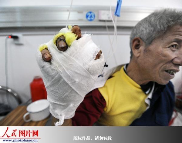 人民网讯 热闹的马戏表演对于许多观众来说可谓充满期待,但对江西南康龙回镇的朱大爷来说简直是一场噩梦。2009年11月5日,他在家门口看马戏团的老虎时,突遭老虎撕咬,幸得众人相救,他才虎口脱险。   11月12日,记者在赣州市人民医院创伤外科见到了61岁的朱大爷,他静静地躺在病床上,右手缠满了厚厚的纱布。回忆起当时的情景,朱大爷心有余悸。事发那天下午,河南某马戏团在他们当地表演,演出开始前,马戏团把即将上场的老虎放在了场外晒太阳。见笼子里的老虎有铁链拴着,出于好奇,大家都想凑前目睹一下真正的老虎。站在朱